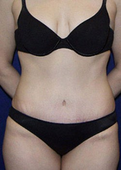 Tummy Tuck Before & After Patient #782223