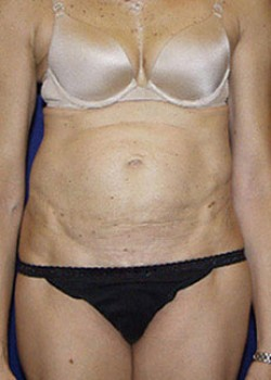 Tummy Tuck Before & After Patient #782218