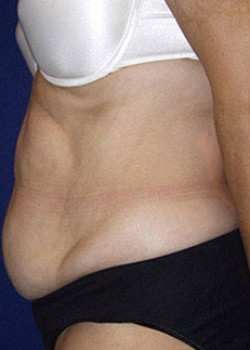 Tummy Tuck Before & After Patient #782213