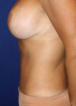 Tummy Tuck Before & After Patient #782210