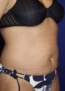 Tummy Tuck Before & After Patient #782205