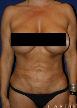 Tummy Tuck Before & After Patient #782195