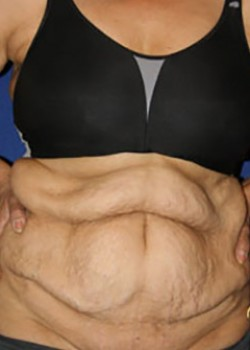 Tummy Tuck Before & After Patient #782178