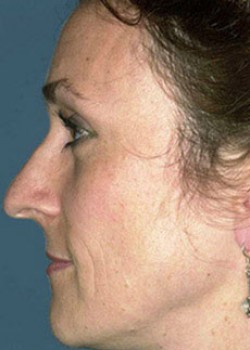Cheek Augmentation Before & After Patient #782544