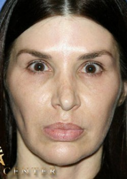 Rhinoplasty Before & After Patient #782612