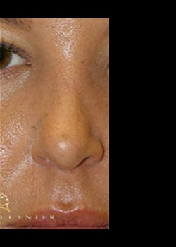 Rhinoplasty Before & After Patient #782599