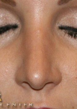 Rhinoplasty Before & After Patient #782594