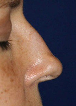 Rhinoplasty Before & After Patient #782591