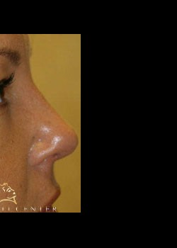 Rhinoplasty Before & After Patient #782576