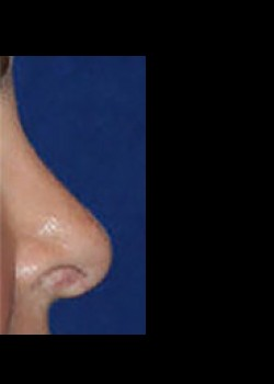 Rhinoplasty Before & After Patient #782573