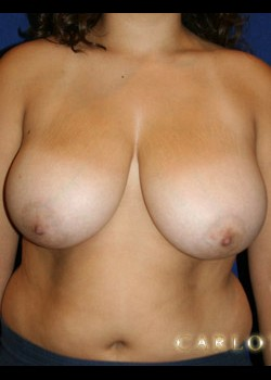Breast Reduction Before & After Patient #782407