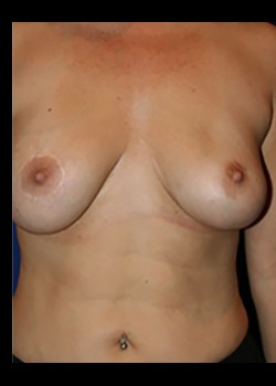 Breast Augmentation Before & After Patient #782401