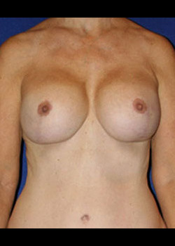 Breast Lift Before & After Patient #782385