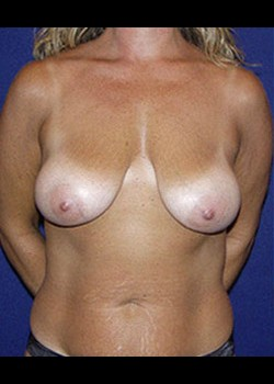 Breast Lift Before & After Patient #782382