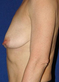 Breast Lift Before & After Patient #782379
