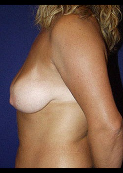 Breast Lift Before & After Patient #782372