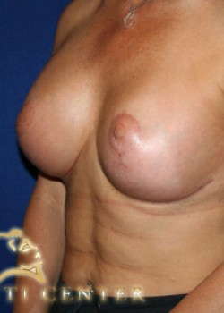 Breast Lift Before & After Patient #782375