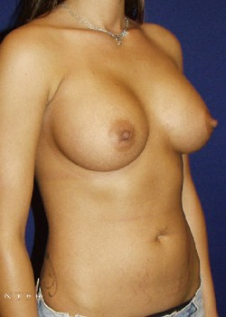 Breast Augmentation Before & After Patient #782347