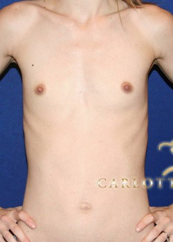 Breast Augmentation Before & After Patient #782318