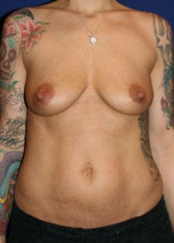 Breast Augmentation Before & After Patient #782303