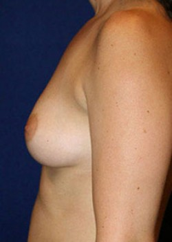 Breast Augmentation Before & After Patient #782284