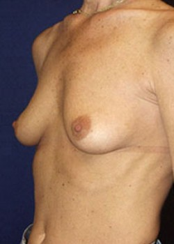 Breast Augmentation Before & After Patient #782272