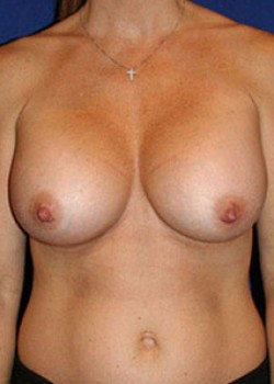 Breast Augmentation Before & After Patient #782269