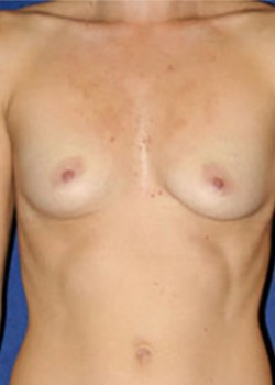 Breast Augmentation Before & After Patient #782250