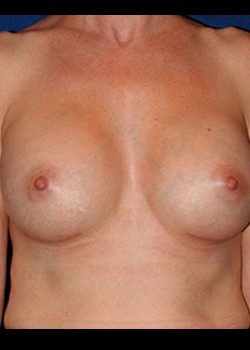 Breast Augmentation Before & After Patient #782240