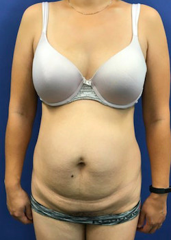 Tummy Tuck Before & After Patient #782169