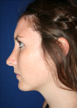 Rhinoplasty Before & After Patient #782561