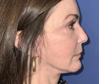 Facial Implants Before & After Patient #782923