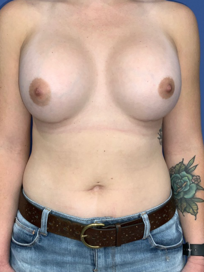 Breast Augmentation Before & After Patient #782953