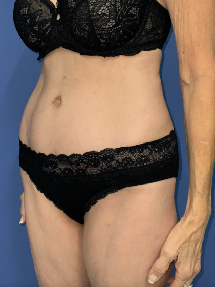 Tummy Tuck Before & After Patient #782965